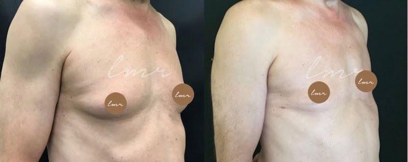 Mamoplastia: O que é, Preço, Antes e Depois Com Fotos - Tudo sobre Cirurgia Plástica