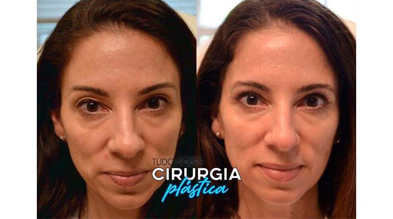 Blefaroplastia: O que é, Preço, Antes e Depois com Fotos
