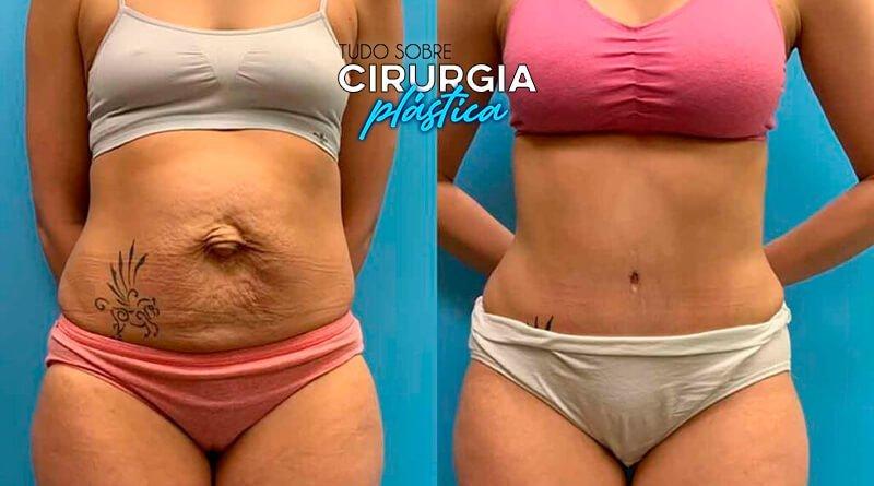 Abdominoplastia Antes e Depois com Fotos