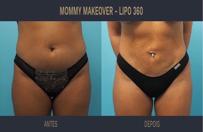 Lipo Lad, Lipo HD, Lipo 3D ou Lipo de Alta Definição: O que é, Valor, Antes e Depois - Tudo Sobre Cirurgia Plástica