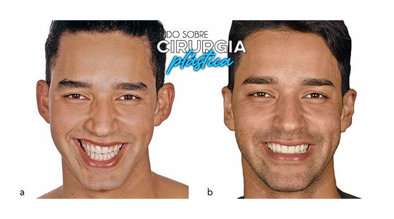 Harmonização Facial: O que é, Valor, Antes e Depois com Fotos