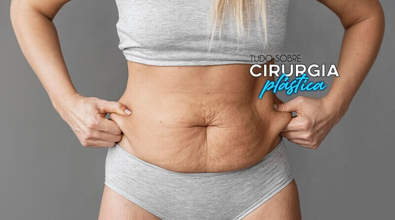 Abdominoplastia Valor e Formas de Pagamento