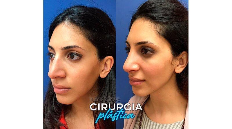 Rinoplastia Antes e Depois com Fotos